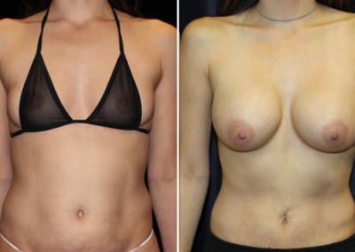 Tummy Tuck - Breast Augmentation