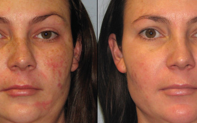 1 Month After 1 Forever Young BBL Treatments - Medspa and Laser Center | Clinique Dallas