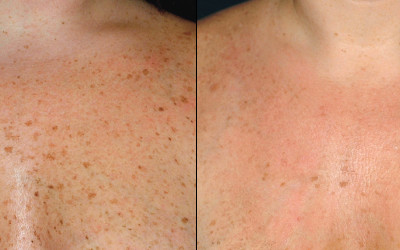 12 Days After 2 Forever Young BBL - Medspa and Laser Center | Clinique Dallas