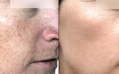 2 Weeks After 2 Forever Young BBL Treatments