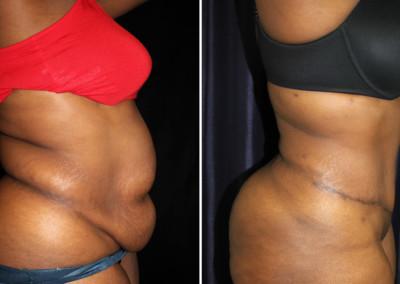 Tummy Tuck / Abdominoplasty