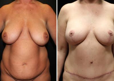 Tummy Tuck - Liposuction - Breast Augmentation Mastopexy 320cc