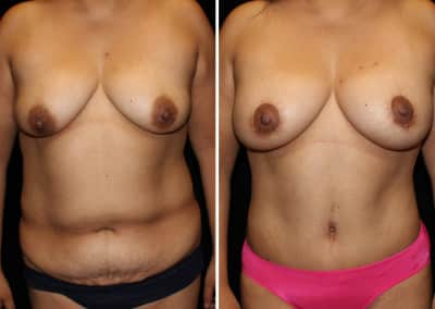 TummyTuck - Breast Augmentation Mastopexy 350cc