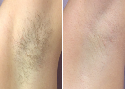 4 Months After 3 Forever Bare BBL Treatments