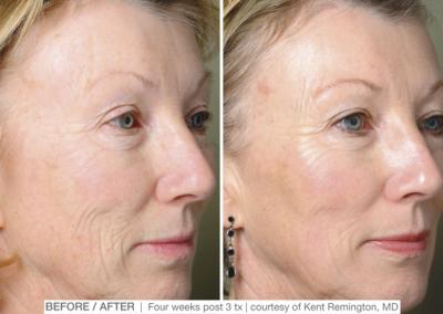 ProFractional Therapy Before and After - Clinique Dallas Plastic Surgery, Medspa & Laser Center