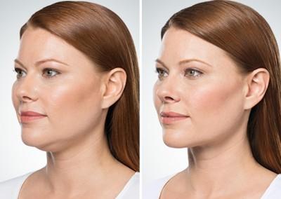 Dallas Kybella - Clinique Dallas Plastic Surgery, Medspa and Laser Center