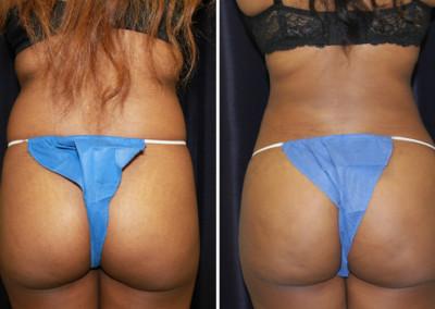 Liposuction & Fat Grafting