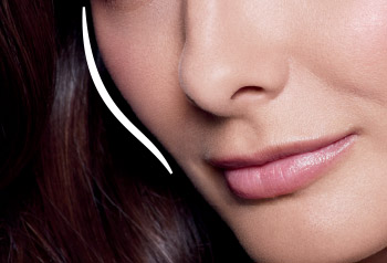 Dallas Juvederm Voluma XC - Clinique Dallas Plastic Surgery, Medspa and Laser Center