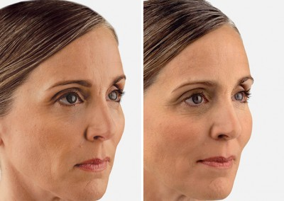 Dallas Juvederm Vouma XC - Clinique Dallas Plastic Surgery, Medspa and Laser Center