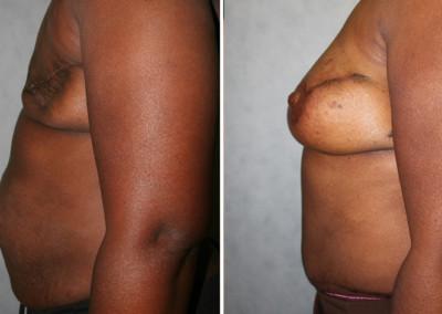 DIEP Flap - Nipple Reconstruction + Tattoo