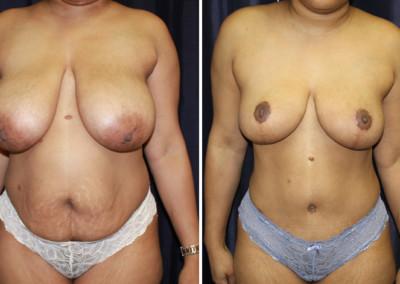 Tummy Tuck - Breast Augmentation Mastopexy