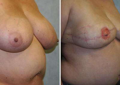 DIEP Flap - Nipple Reconstruction