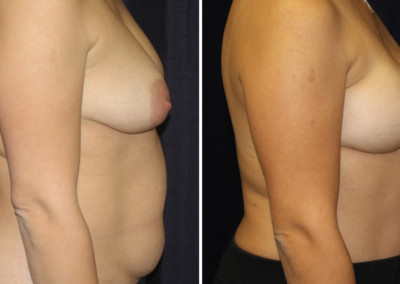 DIEP Flap - Nipple Sparing Mastectomy