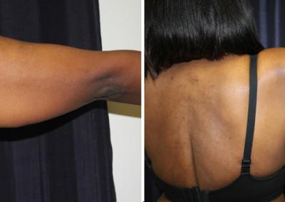 Dallas Arm Lift / Brachioplasty - Plastic Surgery | Clinique Dallas