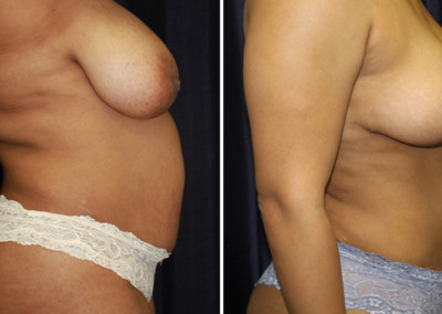 Tummy Tuck - Liposuction - Breast Reduction